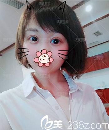 在绵阳朗睿咨询后认同医生方案就找刘峰做了切开双眼皮,分享下术后效果