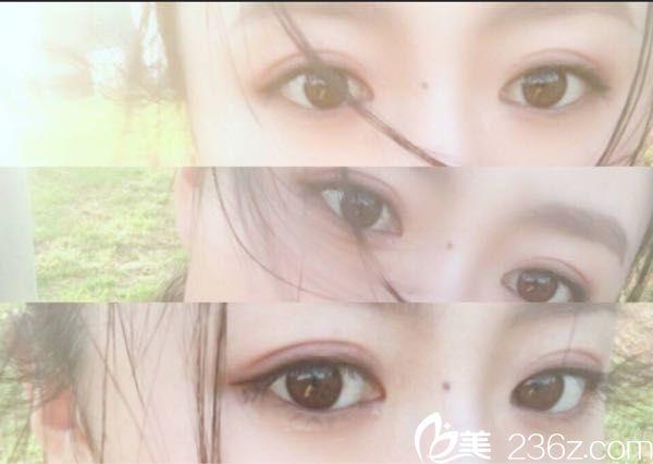 在论坛上发现一位小仙女在武汉卓美找同济王海平教授做的微创小切口双眼皮的经历