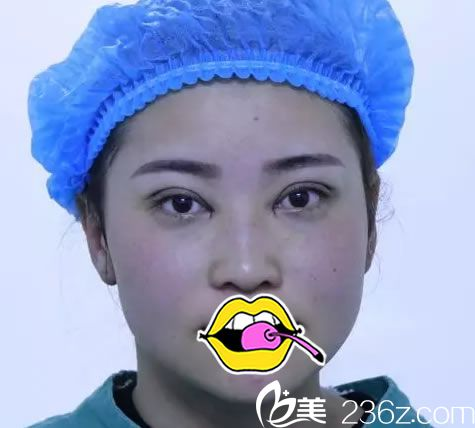 刚做完双眼皮手术的照片