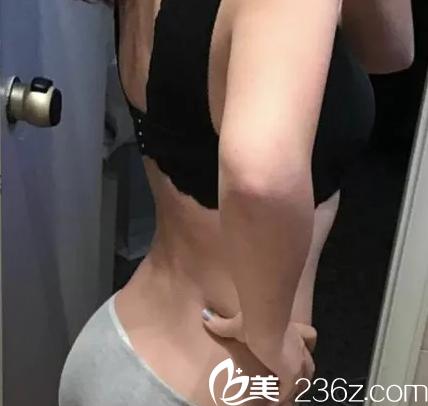 昆明华美美莱腰腹部吸脂案例