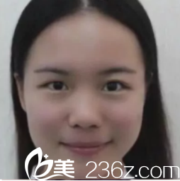西安悦华医疗美容门诊部术前照片1