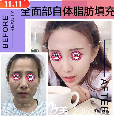 北京叶美人面部脂肪填充案例