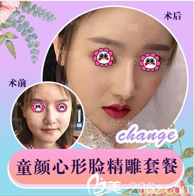 北京叶美人心形脸案例