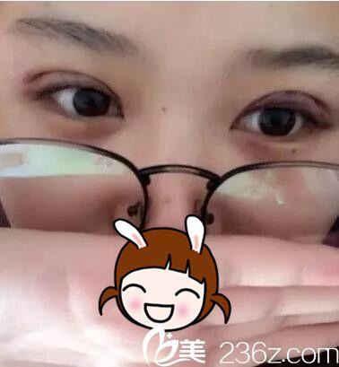 刚做完韩式三点双眼皮