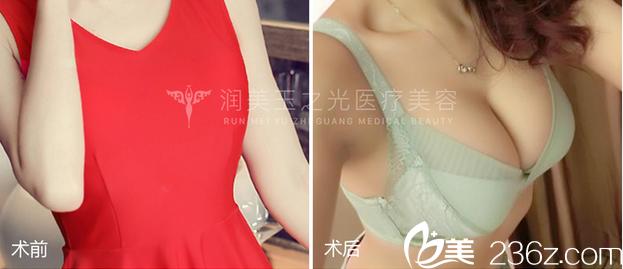 北京润美玉之光王明利医生自体脂肪丰胸案例