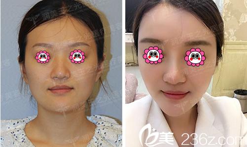 北京润美玉之光王明利医生面部脂肪填充案例
