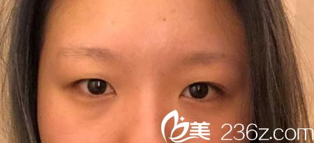 丽江美柏瑞美容医院术前照片1