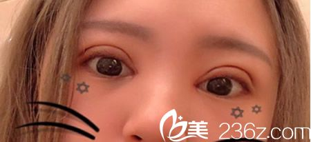 在丽江美柏瑞全切双眼皮术+开内眼角第1天照片