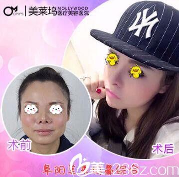 阜阳东方美莱坞鼻综合隆鼻整形真人案例