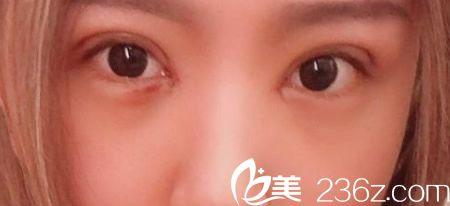 丽江美柏瑞割双眼皮术开眼角后第4天恢复情况