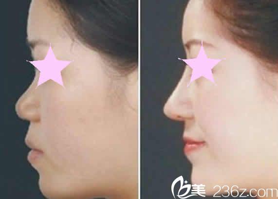 太原丽都整形杨明峰鼻整形失败修复案例效果图
