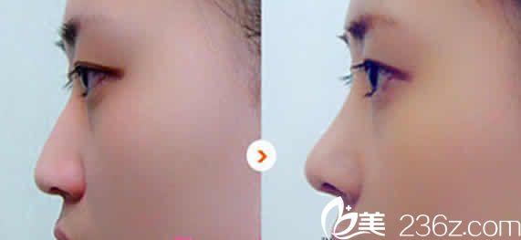 太原华美整形于智宏自体肋软骨隆鼻效果图