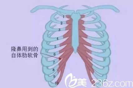 隆鼻用到的肋软骨位置