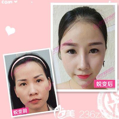 广西南宁东方整形医院刘刚做的隆鼻案例