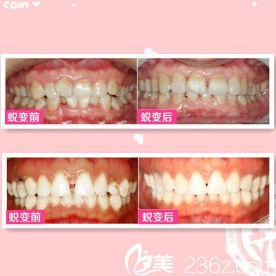 广西南宁东方整形医院牙齿矫正案例
