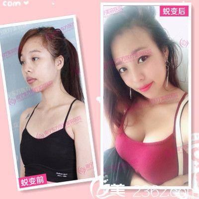 南宁东方整形医院赵波做的自体脂肪隆胸案例