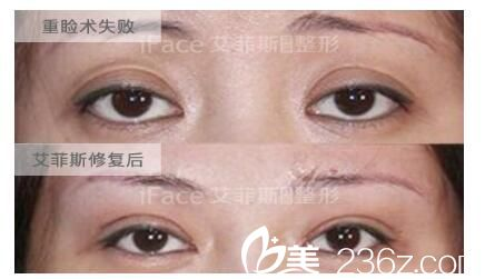 宽度不合适,双眼皮无神修复案例