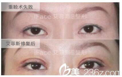术前双眼皮线几乎消失,眼皮松弛修复案例
