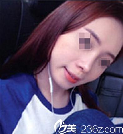 考虑再三,我选择了在四川广元医尔美华美找董甫生做鼻综合,看我隆鼻后得美照