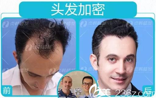 广西南宁贞韩医院做头发加密种植的案例