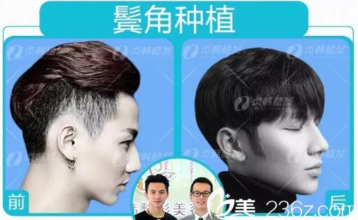 南宁贞韩植发医院做鬓角种植案例对比图