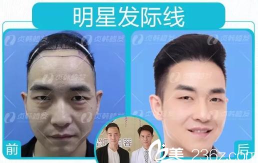 周先生在南宁贞韩植发医院做发际线种植的真实反馈