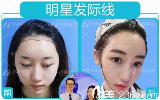 季女士在南宁贞韩植发医院做发际线种植的术后效果