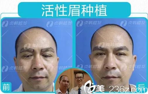 江先生在南宁贞韩植发医院做开运眉毛种植的对比图