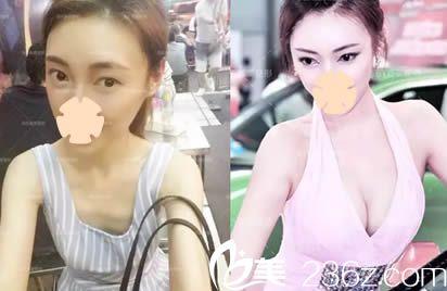 楚雄吴氏嘉美整形美容门诊假体隆胸案例效果图