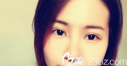 自从找金华玥莱美孙喜平做双眼皮手术效果恢复好后,朋友圈照片点赞的人超级多
