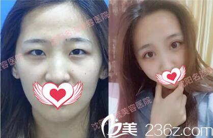 沈阳名流医疗美容董红星双眼皮真人前后对比案例