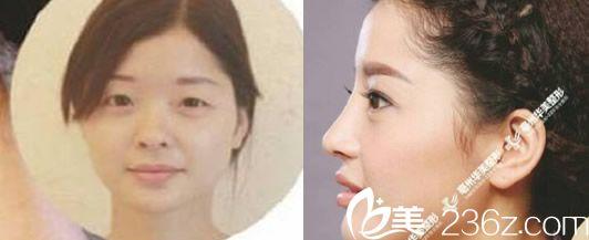 亳州华美达拉斯鼻综合+精雕双眼皮+上睑下垂矫正+注射瘦脸