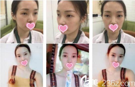 上海艺星双眼皮真人案例