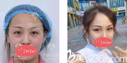 沈阳杏林整形美容医院埋线双眼皮真人案例