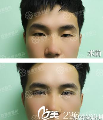 沈阳欣博美医疗美容医院双眼皮真人前后效果对比