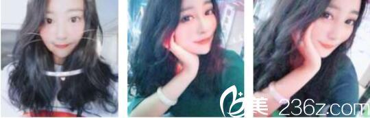 为了留住青春我找上海艺星南玉今做了面部脂肪填充,二十八天的时间就恢复靓丽容颜