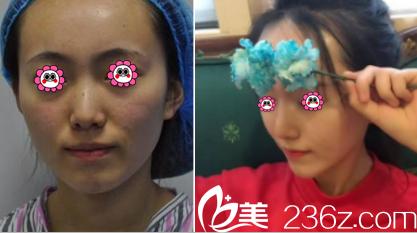 北京伊美康注射隆鼻案例