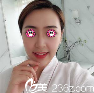 我在北京伊美康花四万余找黄元生做了自体脂肪面部填充你来评效果