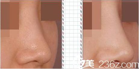 隆鼻前后对比图