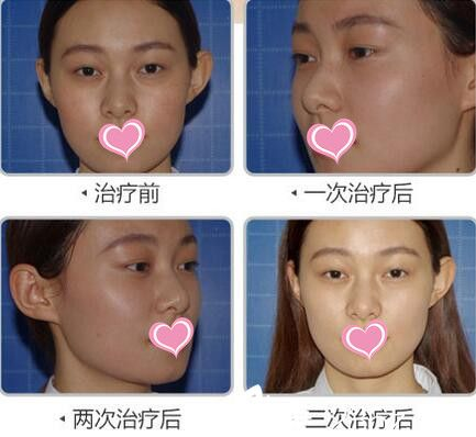 长沙爱思特整形医院皮肤治疗真人案例