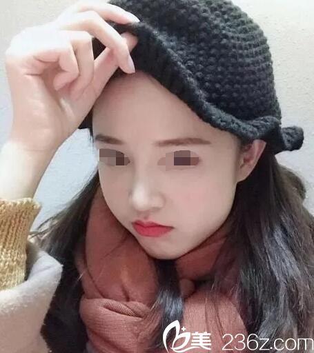 听说苏北人民医院整形科施泽宏创办了扬州施博士整形,特意预约面诊做了鼻综合手术