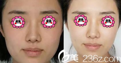 北京丽都高超面部吸脂案例