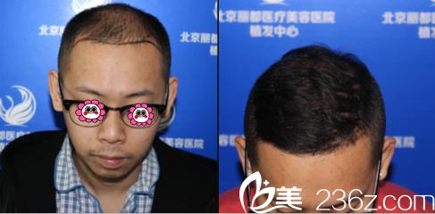 北京丽都马建民头发种植案例