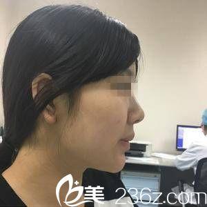 武汉协和医院整形外科王介聪术前照片1