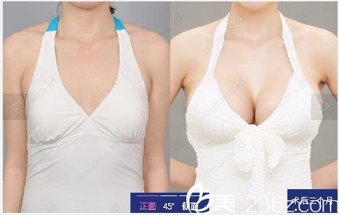 韩国id整形医院隆胸案例对比图