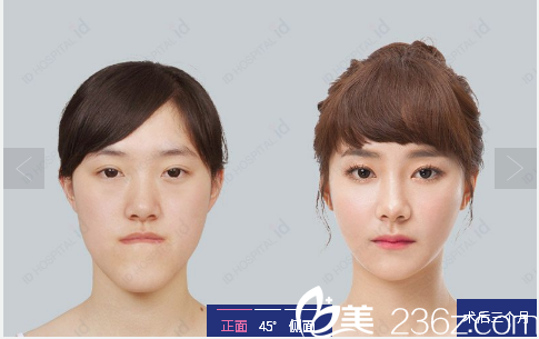 韩国id整形医院下颌角整形案例对比图