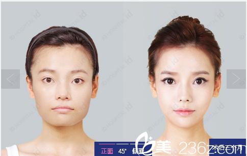 韩国id整形医院颧骨内推和下颌角整形案例
