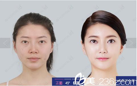 韩国id整形医院双眼皮隆鼻案例