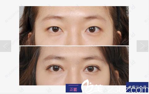 韩国id整形医院双眼皮开眼角案例