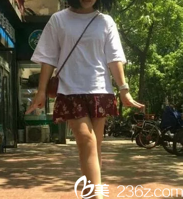 我在北京伊美康做腿部吸脂之前有了解负压抽脂和射频溶脂